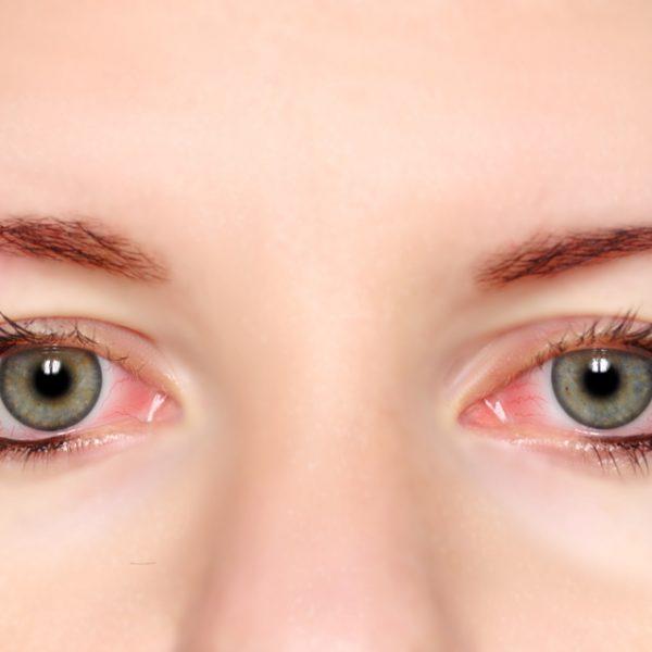 pink-eyes-600x600